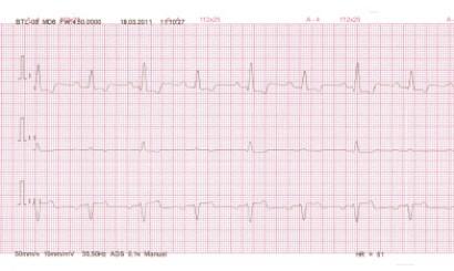 Fot. 7. EKG pacjenta z płynem w worku osierdziowym. Alternacja elektryczna, zmienna amplituda zespołów QRS.