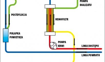Fot. 4. Schemat ciągłej żylno-żylnej hemodiafiltracji (CVVHDF). Dzięki uprzejmości dr. n. med. Jacka Lange.