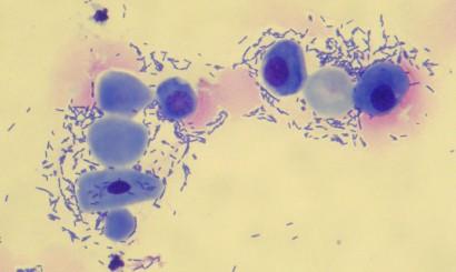 Fot. 3. Osad moczu psa z bakteryjnym zapaleniem pęcherza moczowego. Barwienie: Hemastain. Pow. 1000x. Skupisko komórek nabłonkowych – należy zwrócić uwagę na obecne jądra komórkowe – znaczna anizokarioza. Komórki te pochodzą z pochwy i zostały wypłukane w trakcie oddawania moczu. Odmienności w ich wielkości i kształcie spowodowane są pochodzeniem z różnych warstw błony śluzowej – komórki bardziej zasadochłonne, mniejsze, z większym jądrem komórkowym pochodzą z warstw głębszych, a komórki bezjądrzaste lub z jądrem pyknotycznym pochodzą z warstw powierzchownych.