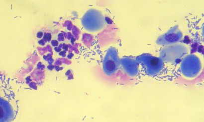 Fot. 4. Osad moczu psa z bakteryjnym zapaleniem pęcherza moczowego. Barwienie: Hemastain. Pow. 1000x. Komórki nabłonka płaskiego. Widoczne skupisko niezdegenerowanych i zdegenerowanych neutrofili. Liczne bakterie (E. coli).