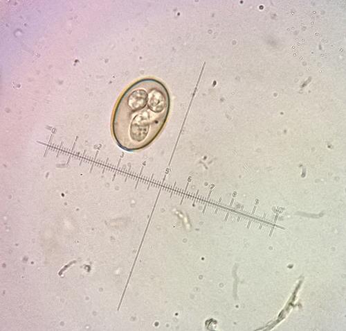 Fot. 2. Dojrzała (wysporulowana) oocysta Eimeria sp. znaleziona w kale królika. Wewnątrz oocysty widoczne cztery sporocysty. Powiększenie 1000x.