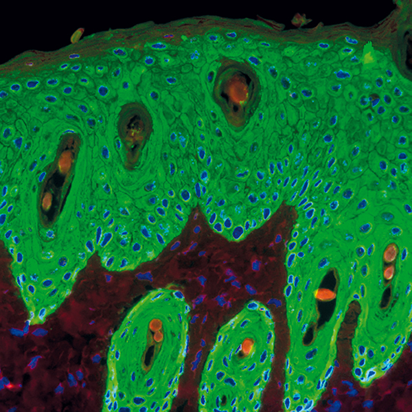 Keratynocyt w skórze myszy.