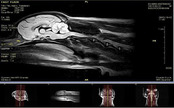 Fot. 4. Badanie MRI mózgowia oraz przedniego odcinka rdzenia kręgowego w projekcji strzałkowej. Obraz T1-zależny.