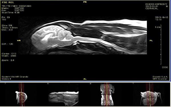 Fot. 5. Badanie MRI mózgowia i rdzenia kręgowego w projekcji strzałkowej. Widoczne jamy syringomyeliczne. Obraz T2-zależny.