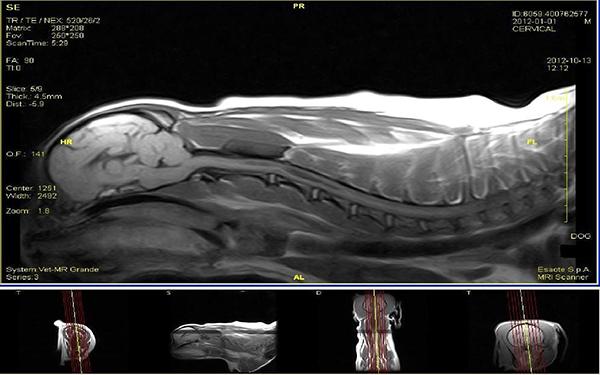 Fot. 6. Badanie MRI mózgowia i rdzenia kręgowego w projekcji strzałkowej. Widoczne jamy syringomyeliczne. Obraz T1-zależny.