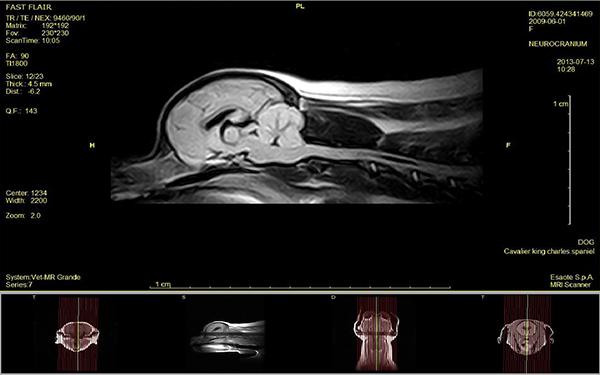 Fot. 8. Badanie MRI w projekcji strzałkowej z uwidocznieniem przepukliny móżdżku. Obraz T1 -zależny.