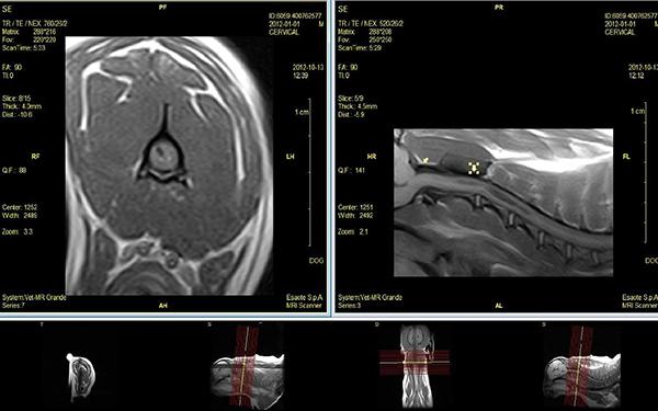Fot. 13. Badanie MRI w projekcji strzałkowej i poprzecznej z uwidocznieniem jamy syringomyelicznej oraz przepukliny móżdżku. Obrazy T1-zależne.