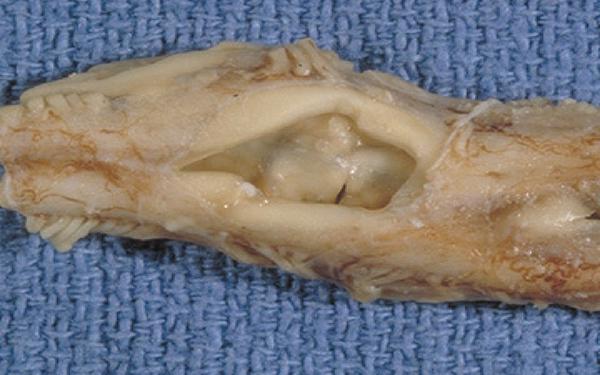 Fot. 15. Obraz sekcyjny rdzenia kręgowego w przebiegu syringohydromyelii.