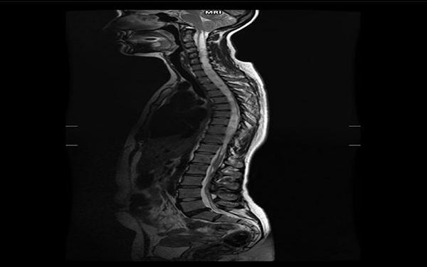 Fot. 18. Zaawansowana syringohydromyelia oraz malformacja Arnolda-Chiariego u człowieka. Zmiany obejmują wszystkie odcinki rdzenia kręgowego. Obraz T2-zależny.