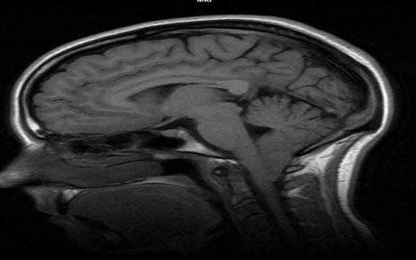 Fot. 22. Cechy obecności malformacji Arnolda-Chiariego bez cech syringohydromyelii u człowieka. Widoczna przepuklina móżdżku. Obraz T1-zależny.