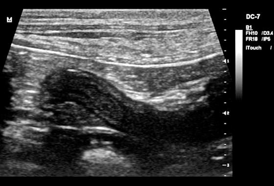 Fot. 8. Róg jajnika z uwidocznioną warstwowością, poszerzenie i pogrubienie warstwy śluzowej rogu macicy, obrazowanie charakterystyczne dla narządu w fazie estrus.