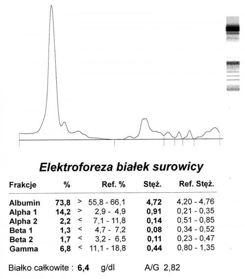 Fot. 1. Przypadek 1. Kot Fiona. Elektroforeza, znacznie obniżony poziom gammaglobulin.