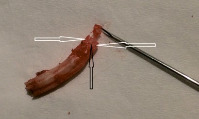 Fot. 26. Widok zęba P2 żuchwy po ekstrakcji wewnątrzustnej. Widoczne dwie jamy miazgi (białe strzałki) oraz rozdzielająca je przegroda (czarna strzałka). Z jednej z jam wyeksponowano za pomocą igły miazgę zęba.