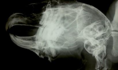 Fot. 27a-d. RTG pacjenta, u którego podczas zabiegu doszło do złamania jatrogennego żuchwy. Opis w tekście.