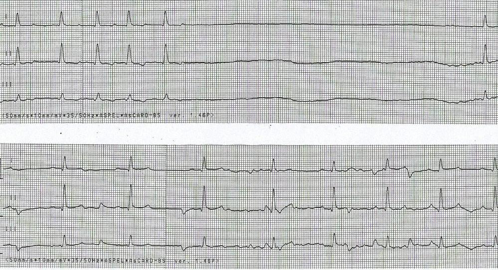 Fot. 1. Zapis EKG w momencie przyjęcia pacjenta do kliniki (góra) – widoczna asystolia przez 3,1 s, brak załamków P i nieznaczne poszerzenie zespołu QRS, poniżej zapis po 24 h od rozpoczęcia terapii – rytm stał się miarowy, zespoły QRS skróciły czas strania, oraz przywrócono załamek P.